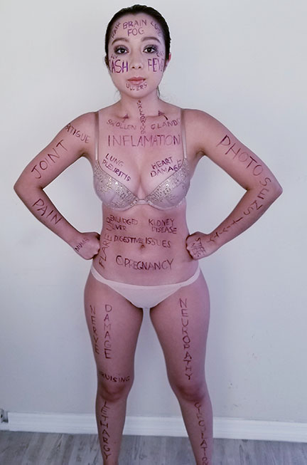 geeves with lupus symptoms written over her body